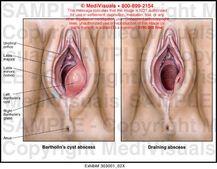 Swollen Irritated Labia During Pregnancy