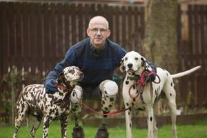 A dog lover has prosthetic legs made to match his beloved Dalmatians