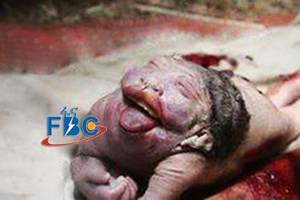Woman Gives Birth To A Strange Baby-Like Creature