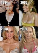 Jewel Plastic Surgery Before and After Breast Implants  Celebrity