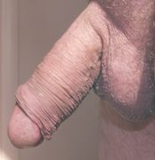 The Beautiful Cock: Retracting the Foreskin