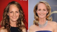Helen Hunt Plastic Surgery Before and After Botox Injections and