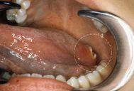inside the mouth or white spots on the tongue white patches inside