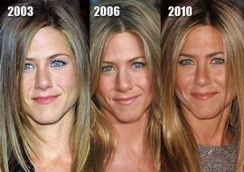 famousplasticsurgery.blogspot.com: Jennifer Aniston – Is her face