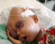 Blood cancer in children