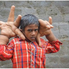 Kaleem, Kanak-kanak Lelaki Miliki Tangan Bersaiz Gergasi. ~ Gaban Comel