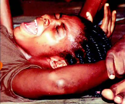 Female Genital Mutilation In Africa Procedures
