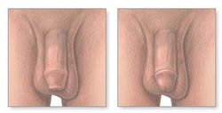Learned about the male reproduction system   Foreskin Restoration