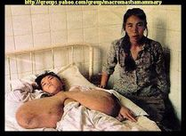 macromastia: Ting Jiafen