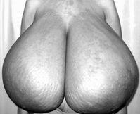 macromastia gigantomastia