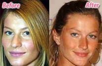 See Gisele B�ndchen�s wrinkles under her eyes, her NOSE Job & BOOB