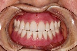 Complete Denture / Mandibular Complete Denture  Small Maxilla