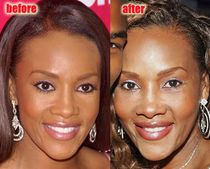 Vivica Fox Plastic Surgery Before and After Nose Job and Breast