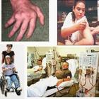 Penyakit Autoimun: Apabila Sistem Kekebalan Tubuh Kekeliruan
