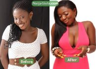 Nigerian Actress Yvonne Jegede In Breast Surgery Scandal (Photos