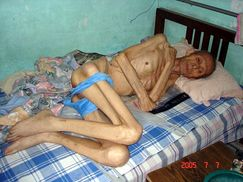 70YearOld Falun Gong Practitioner Tortured until Skin and Bones