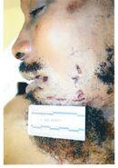 Autopsy photos of Imam Luqman Ameen Abdullah   Weblog of Dawud Walid