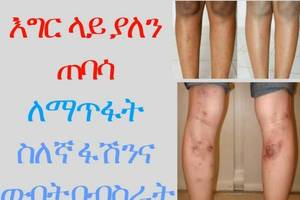 ETHIOPIA – -How to Effectively Remove Scars from the leg