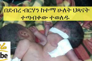 ETHIOPIA – Conjoined twin born in north Shewa Debrebrhan City