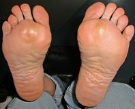 Ex GF wrinkled soles | Flickr  Photo Sharing!