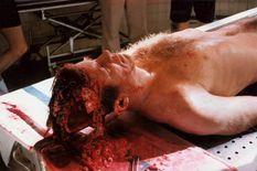 Autopsy Photos Of President John Fitzgerald Kennedy