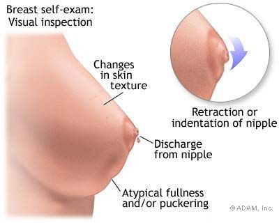 Stage Three Breast