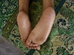 Amazon Wrinkled soles in bed  YouTube