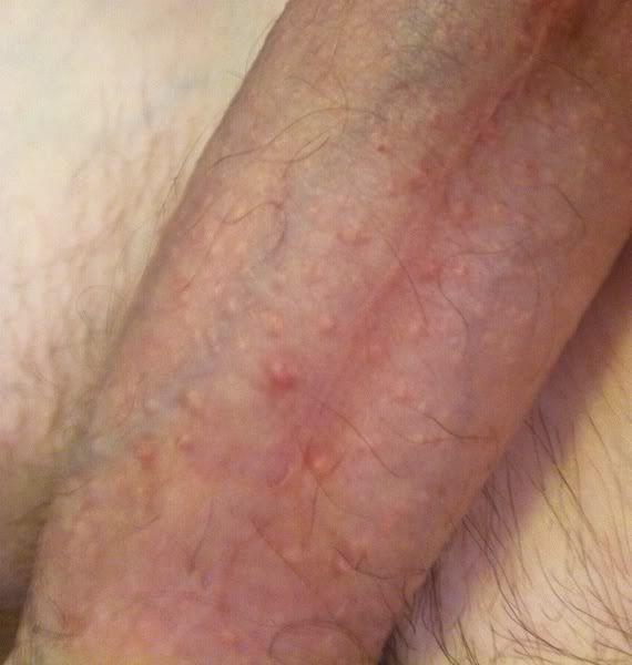 Close Up Penis