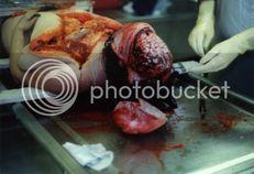 autopsy brain Image