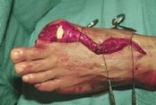 Hand Amputations and Replantation