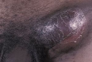 Pictures of STDs: Herpes, Genital Warts, Gonorrhea, STD Symptoms