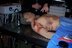 death photos history: Autopsy Pictures