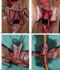 surgical procedures | Tumblr