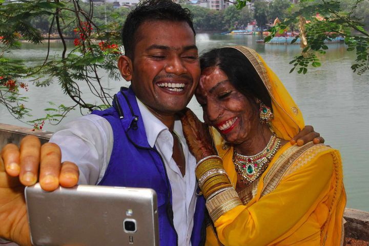 Wrong number leads to happy wedding for acid attack survivor and the pictures are gorgeous
