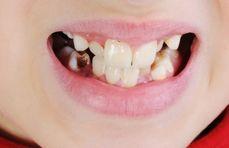 Zašto nas je evolucija kaznila lošim zubima?