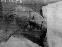 Marilyn Monroe Autopsy Photos � Graphic ContentBe Warned!