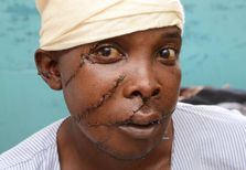 Simon Kiguta in a Nyeri hospital Feb  11, 2012  He was slashed across