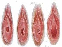 STRUCTURE VAGINA , PICTURE OF VAGINA , VAGINAL ORGASM , VARIES HYMEN