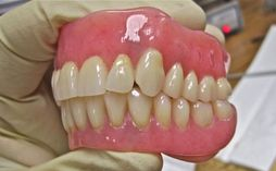 natural looking dentures portland denture dental implant specialists