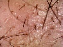 Pubic hair follows a controlled growth