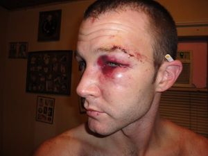 Gay Texan Savagely Attacked with Broken Beer Bottle, Then Thrown in