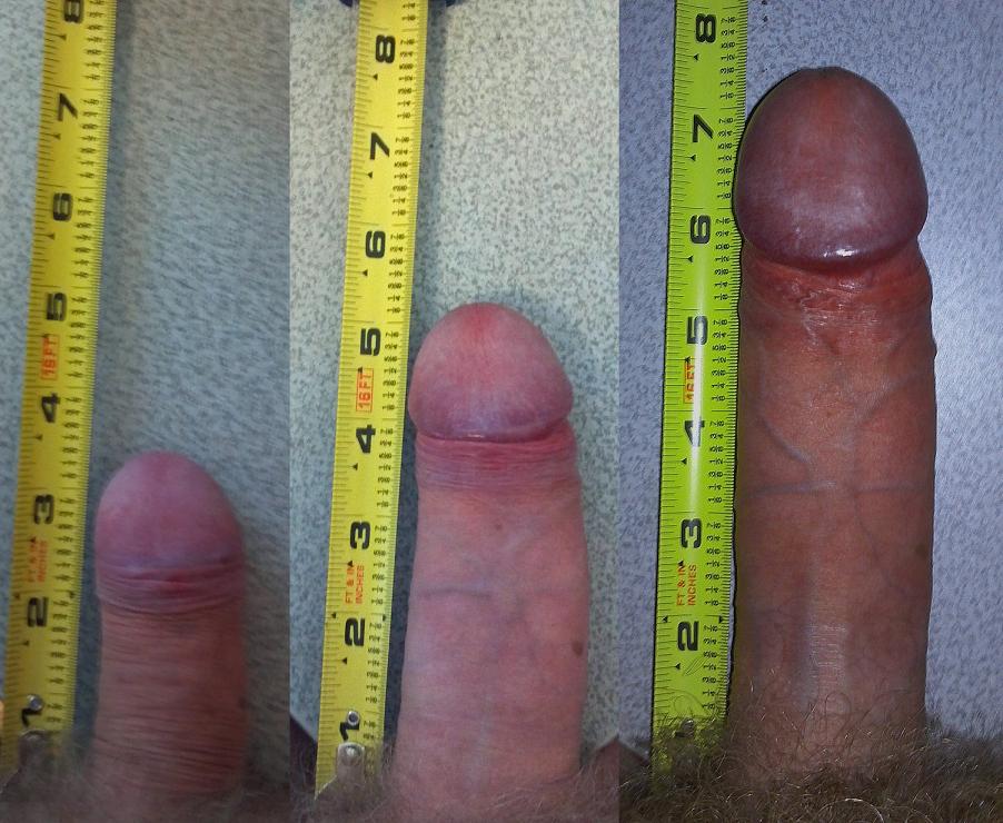 Penis Flacid