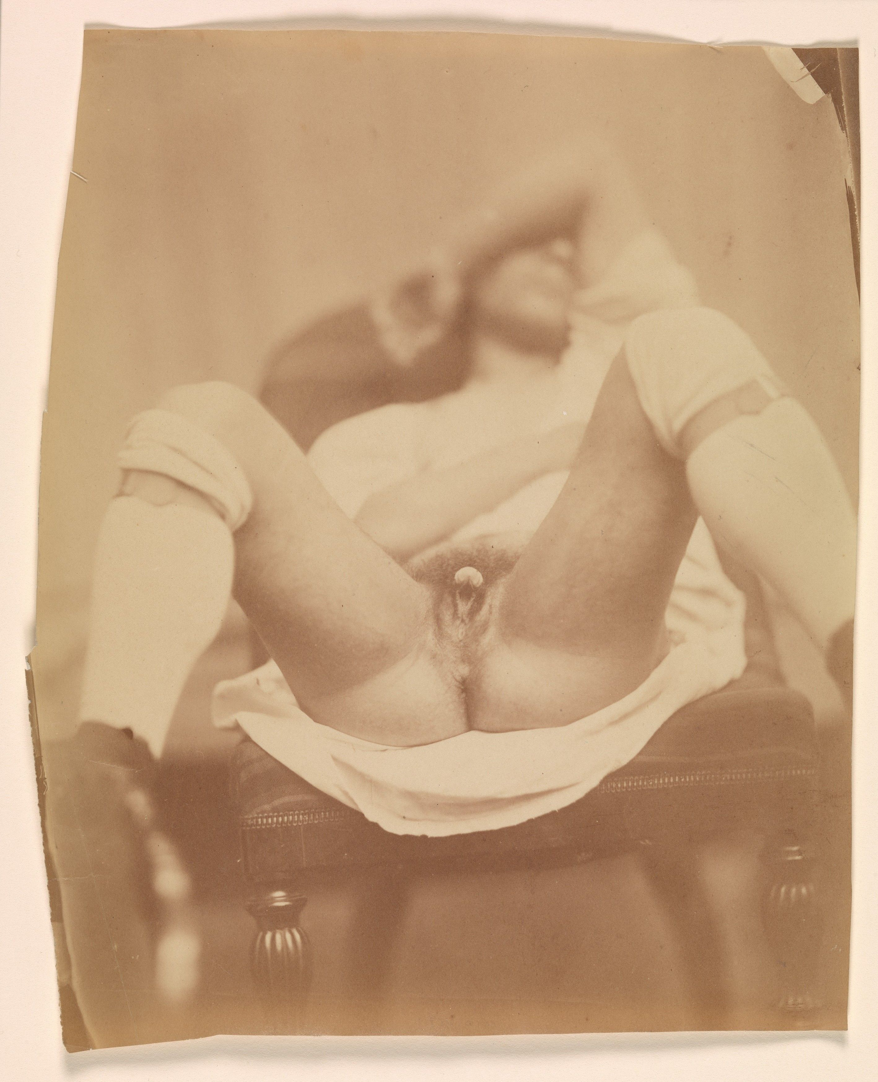 Hermaphrodite Genitals