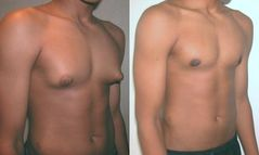 ????:Adolescent with Gynecomastia jpg