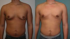 Description Adolescent Gynecomastia jpg