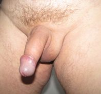 File:Shaved Penis JPG  Wikimedia Commons