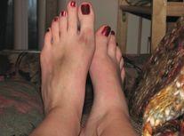 Dosya:Human Feet  female  bruised jpg  Vikipedi
