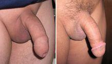 Description Uncircumcised and circumcised penis JPG
