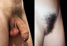 Pubic hair  Wikipedia, the free encyclopedia