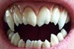 Losi Zubi